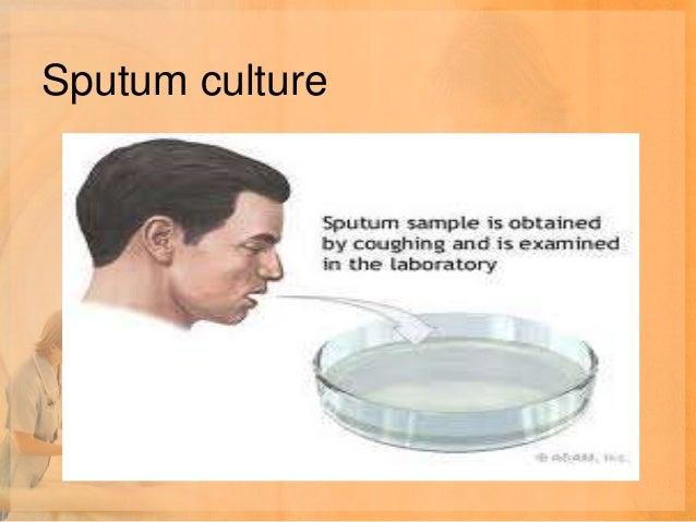 MEDICAL MANAGEMENT• MACROLIDES• TETRACYCLINES• FLUOROQUINOLONES