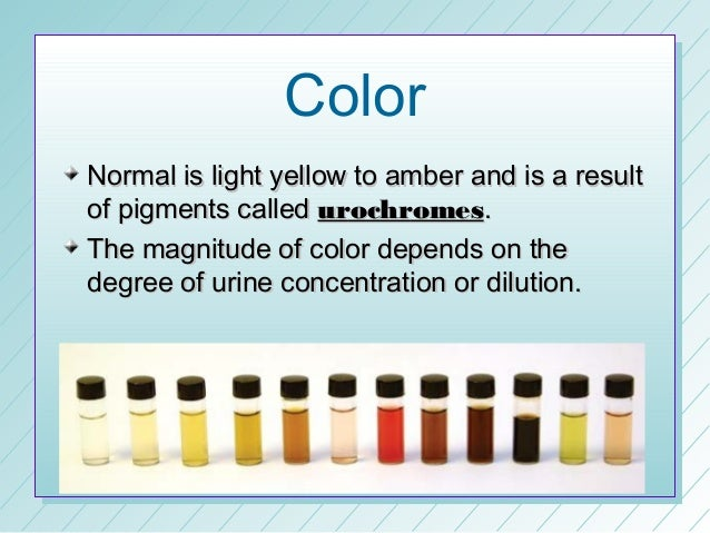 Different Colors Of Urine