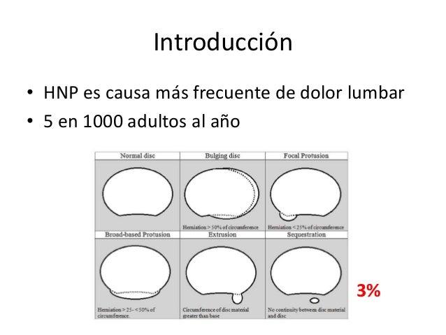 Introducción • HNP es causa más frecuente de dolor lumbar • 5 en 1000 adultos al año 3%
