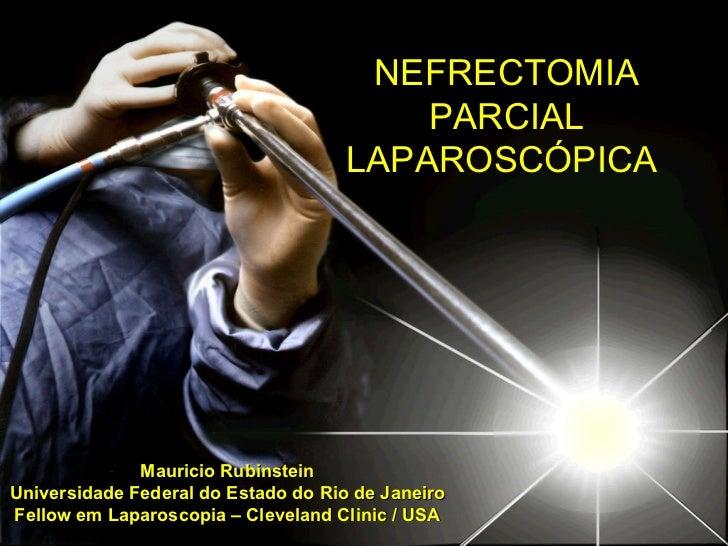 Mauricio Rubinstein Universidade Federal do Estado do Rio de Janeiro Fellow em Laparoscopia – Cleveland Clinic / USA NEFRE...