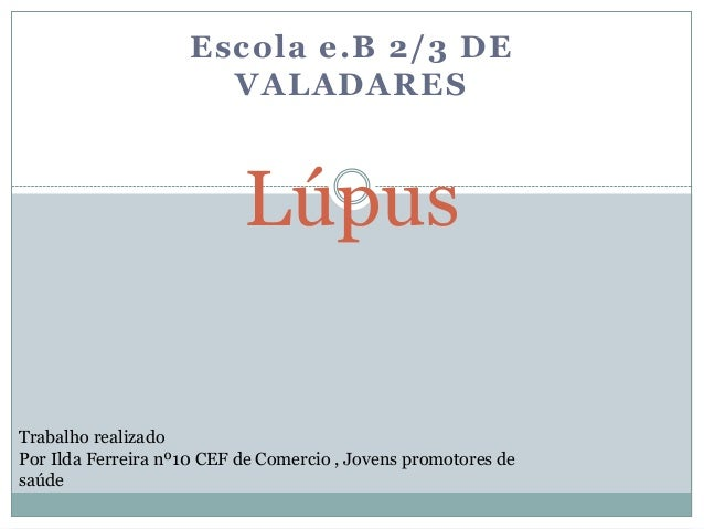 Escola e.B 2/3 DE                       VALADARES                           LúpusTrabalho realizadoPor Ilda Ferreira nº10 ...