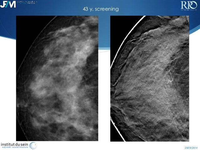 breast tomosynthesis courses 2014 Cme meetings, online/self study cme, and free cme courses continuing medical education and self assessment breast tomosynthesis 2014 tuesday, march 4, 2014.