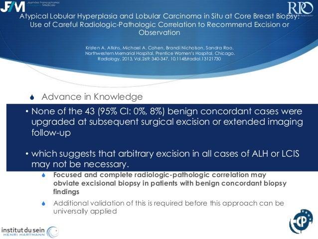 L rotenberg  g lenczner premalignant breast lesion imaging