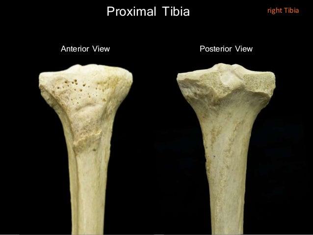 Slideshow: Tibia