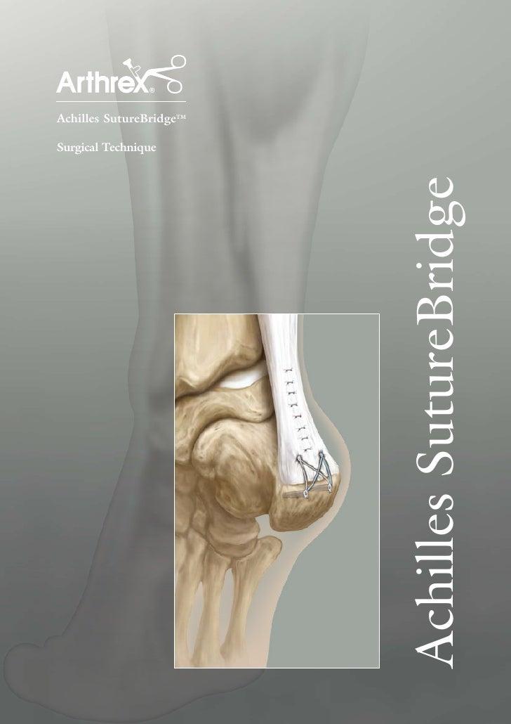 Achilles SutureBridgeTM  Surgical Technique                               Achilles SutureBridge