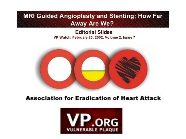 Editorial Slides VP Watch, February 20, 2002, Volume 2, Issue 7 MRI Guided Angioplasty and Stenting; How Far Away Are We?