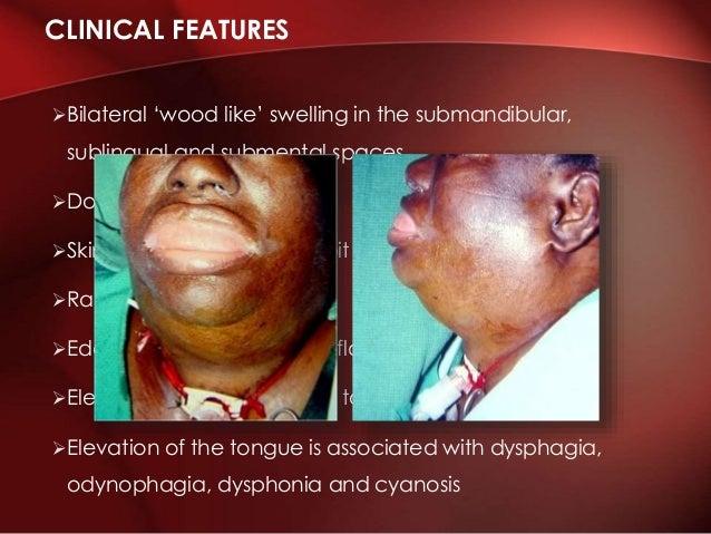 oral systemic corticosteroids