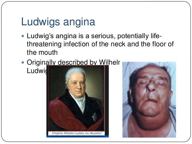 ludwigs-angina-2-638?cb=1434536404, Skeleton