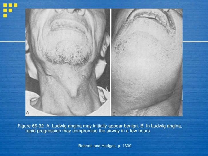 ludwigs angina & anaesthetic management, Skeleton