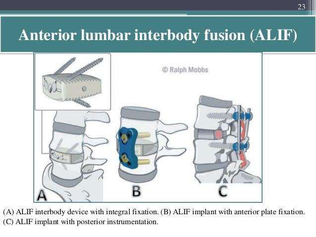 lumbar transforaminal epidural steroid injection cpt code