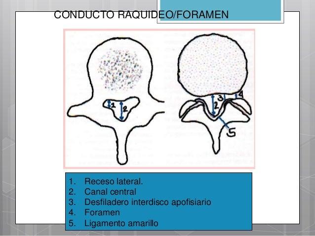 Radiología de la Columna