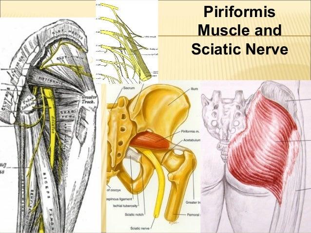 lumbar spine and sciatica