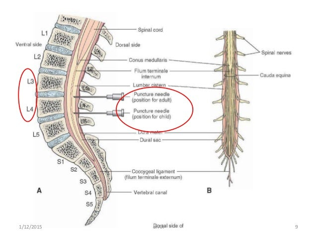 Anatomy of lumbar puncture