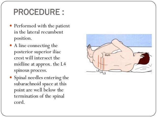 Lumbar puncture and bone marrow aspiration procedure performed pronofoot35fo Choice Image