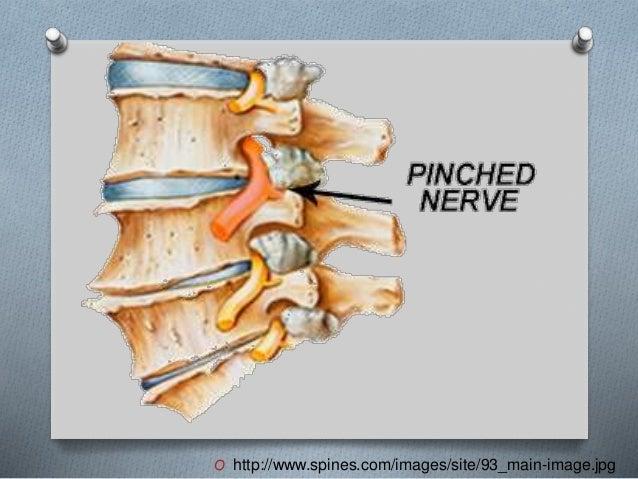 O http://www.spines.com/images/site/93_main-image.jpg