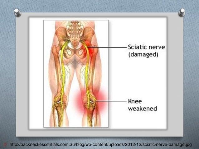 O http://backneckessentials.com.au/blog/wp-content/uploads/2012/12/sciatic-nerve-damage.jpg