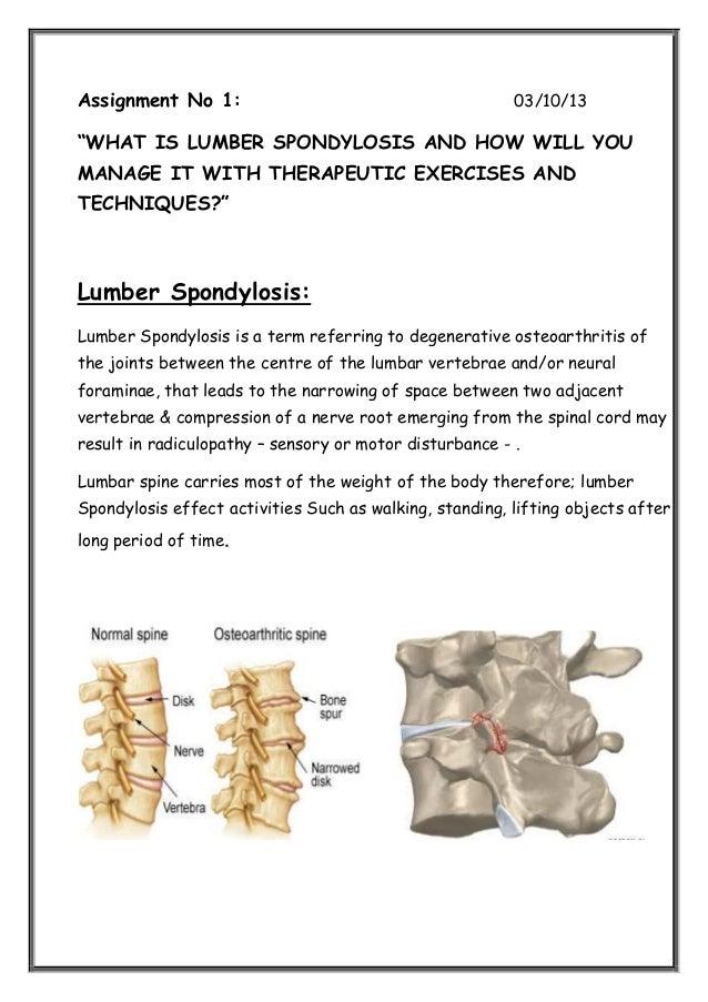 lumbar spondylothesis The vast majority of spondylolysis occur in the lumbar vertebrae a significant number of individuals with spondylolysis will develop spondylolisthesis.