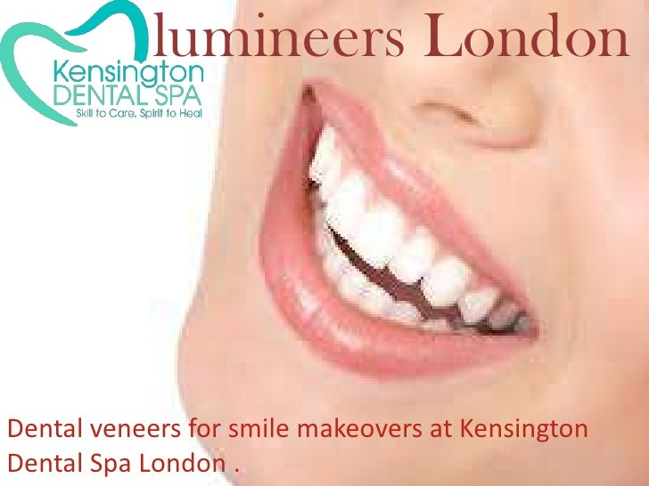 lumineers London<br />lumineers London<br />Dental veneers for smile makeovers at Kensington Dental Spa London . <br />