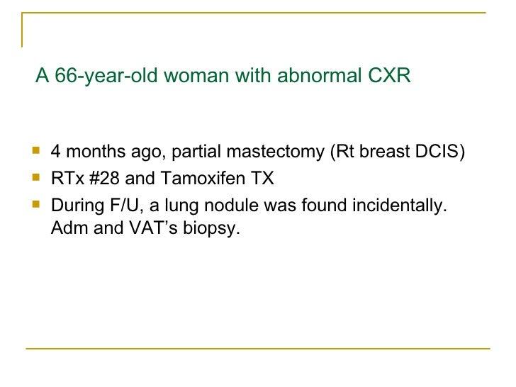 A 66-year-old woman with abnormal CXR <ul><li>4 months ago, partial mastectomy (Rt breast DCIS) </li></ul><ul><li>RTx #28 ...