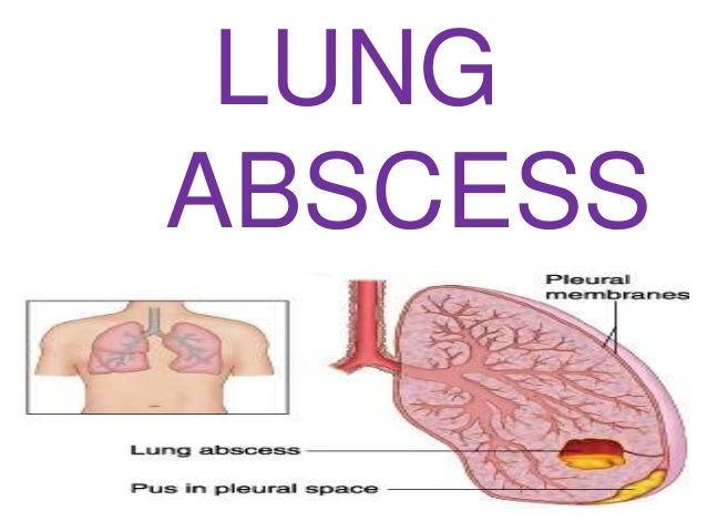 case presentation on lung abscess