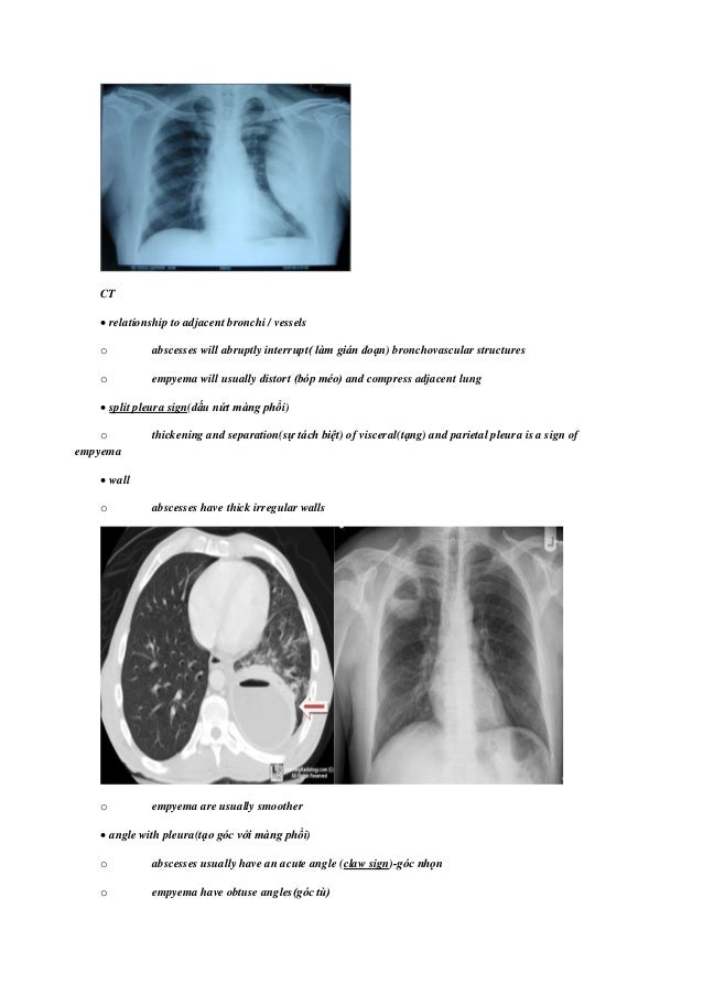 Lung abscess-etiology diagnostic and treatment options