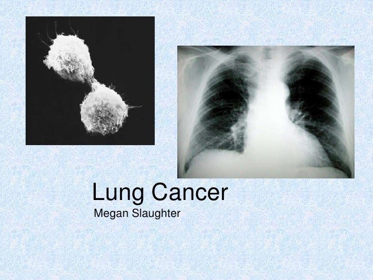 Lung Cancer<br />Megan Slaughter<br />