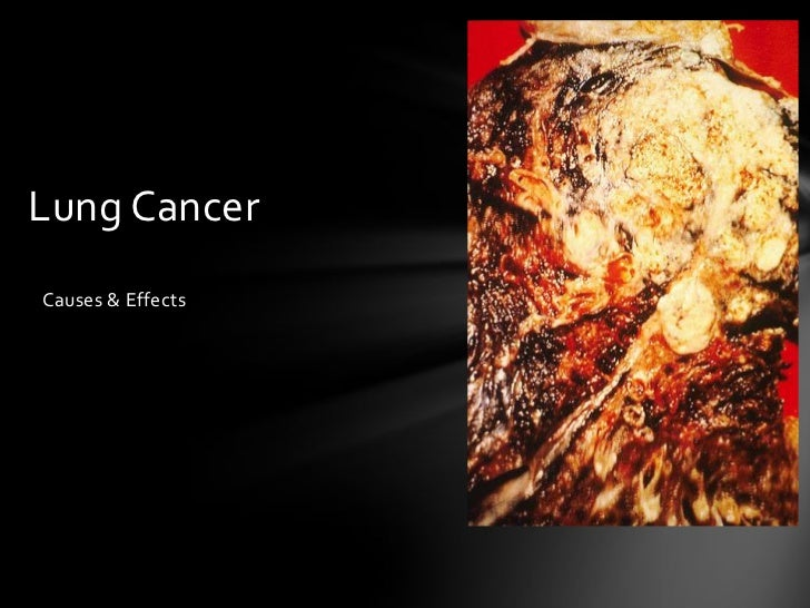 Lung CancerCauses & Effects