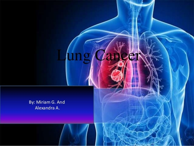 Lung Cancer By: Miriam G. And Alexandra A.  1