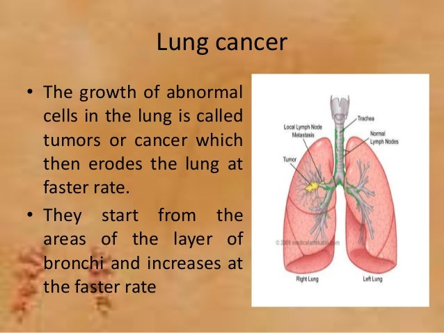 lung and lung cancer symptoms - an overview, Human Body