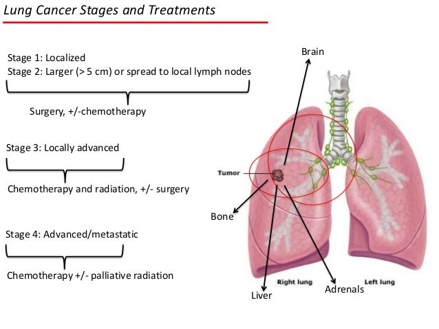 Lung Cancer Stages, Treatments and Targeted Therapies