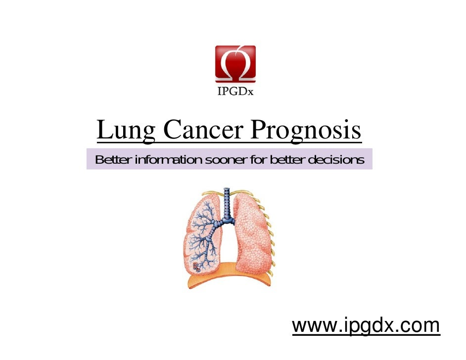 Lung Cancer Prognosis   www.ipgdx.com Better information sooner for better decisions