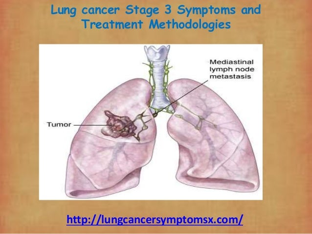 lung cancer stage 3 symptoms and treatment methodologies. Black Bedroom Furniture Sets. Home Design Ideas