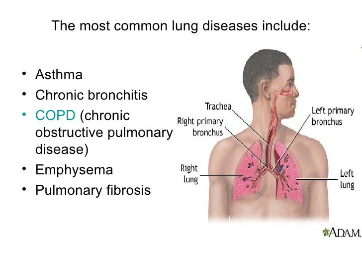 pulmonary disease or lung disease Latest medical research on lung disease learn about the symptoms of chronic obstructive pulmonary disease (copd), emphysema, and lung cancer along with the latest treatment information.