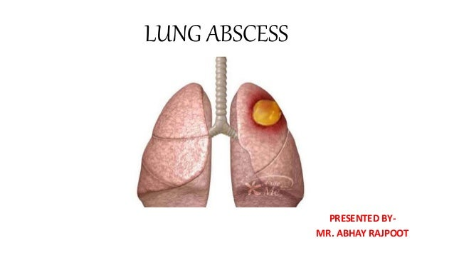 LUNG ABSCESS PRESENTED BY- MR. ABHAY RAJPOOT