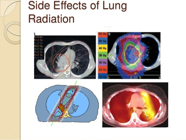 the effects of radiation on cancer The main expert body on radiation effects is the un scientific the health effects of exposure both to radiation and to chemical cancer-inducing agents or.