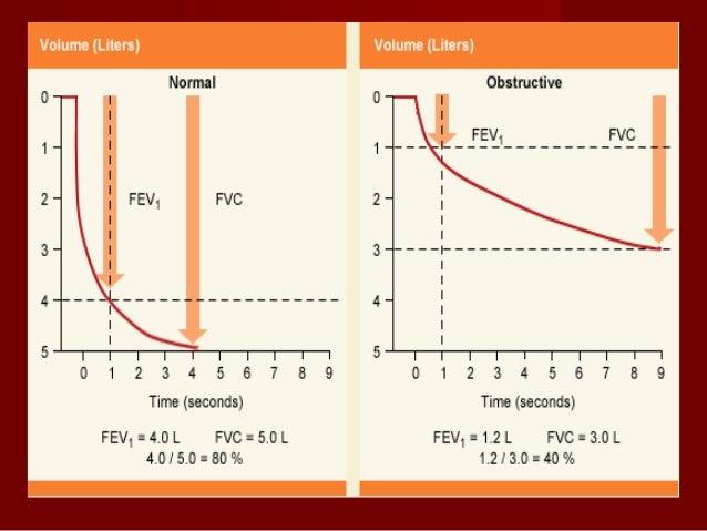 Nitrogen-meter methodNitrogen-meter method Fowler's Method )Anatomic DS(