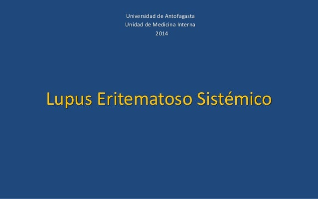 Lupus Eritematoso Sistémico Universidad de Antofagasta Unidad de Medicina Interna 2014