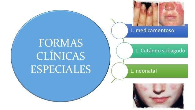 FORMAS CLÍNICAS ESPECIALES L. medicamentoso L. Cutáneo subagudo L. neonatal