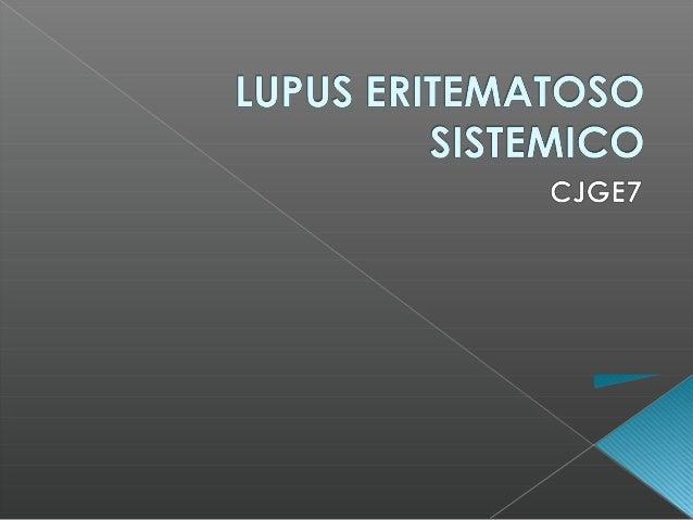  Enfermedad autoinmune  Producción de anticuerpos  Inflamatoria  Crónica  Multisistémica (Renal)  Etiología aún desc...