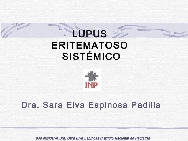 LUPUS            ERITEMATOSO             SISTÉMICODra. Sara Elva Espinosa Padilla   Uso exclusivo Dra. Sara Elva Espinosa ...
