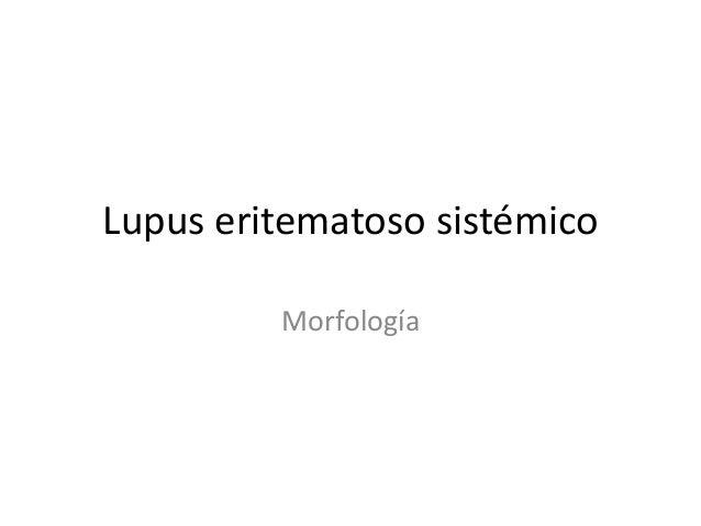 Lupus eritematoso sistémico  Morfología