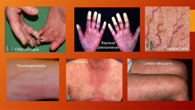 Lupus erythematosus slide share chilblain lupus raynaud phenomenon thrombophlebitis telangiectasia urticaria livedo reticularis 39 sciox Image collections