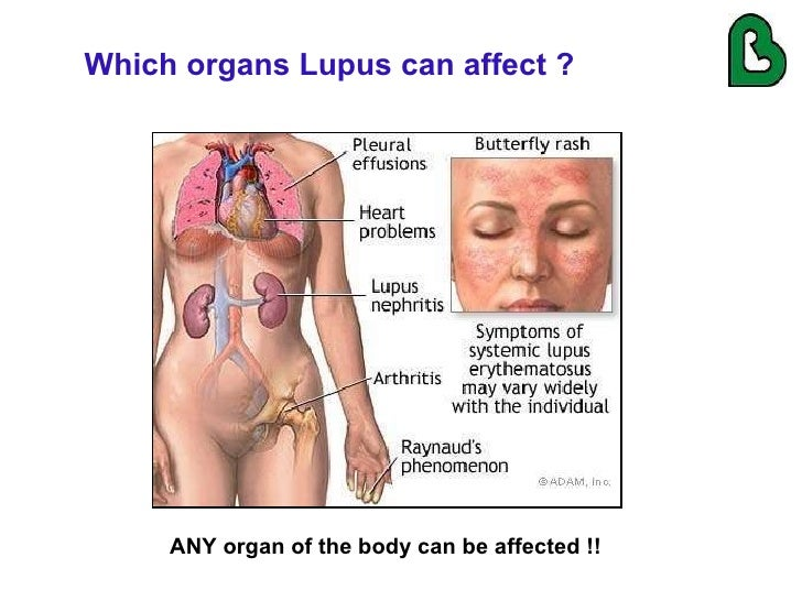 lupus and the lungs by dr. gilda diaz-fuentes, Skeleton