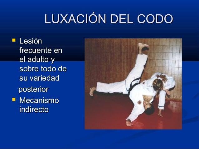 LUXACIÓN DEL CODOLUXACIÓN DEL CODO  LesiónLesión frecuente enfrecuente en el adulto yel adulto y sobre todo desobre todo ...