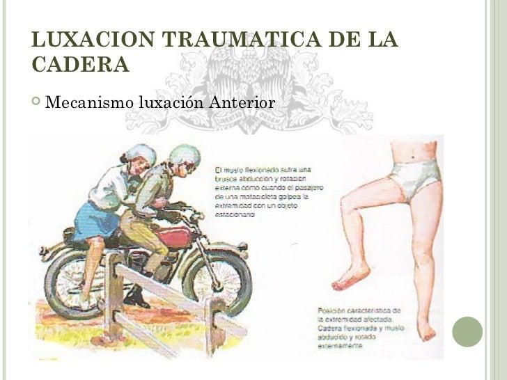 La quiropráctica el tratamiento de la hernia de la columna vertebral las revocaciones