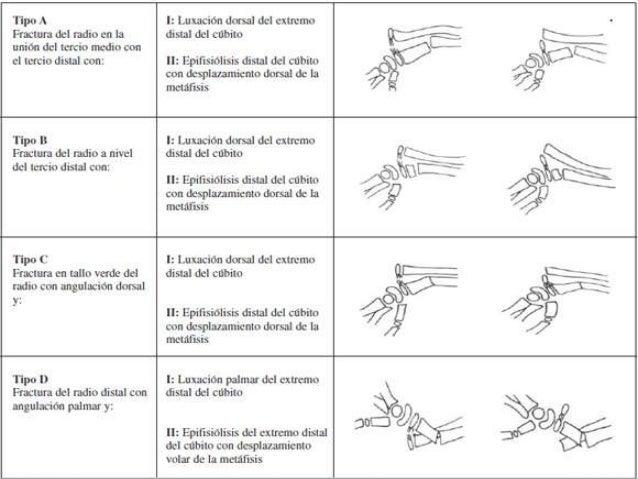 FRACTURA DE MONTEGGIA PDF
