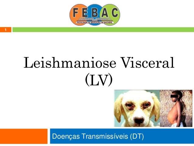 Doenças Transmissíveis (DT) 1 Leishmaniose Visceral (LV)
