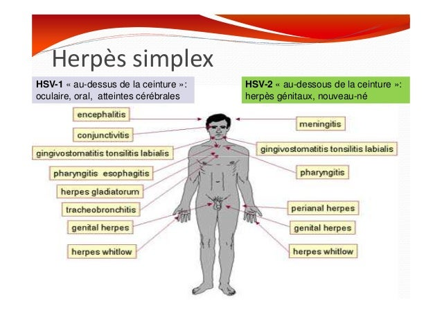 primo infection herpes oral