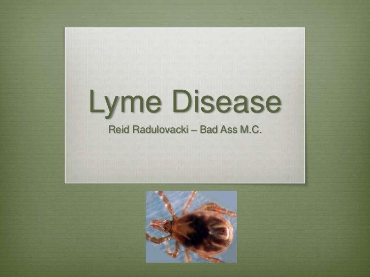 Lyme Disease Reid Radulovacki – Bad Ass M.C.