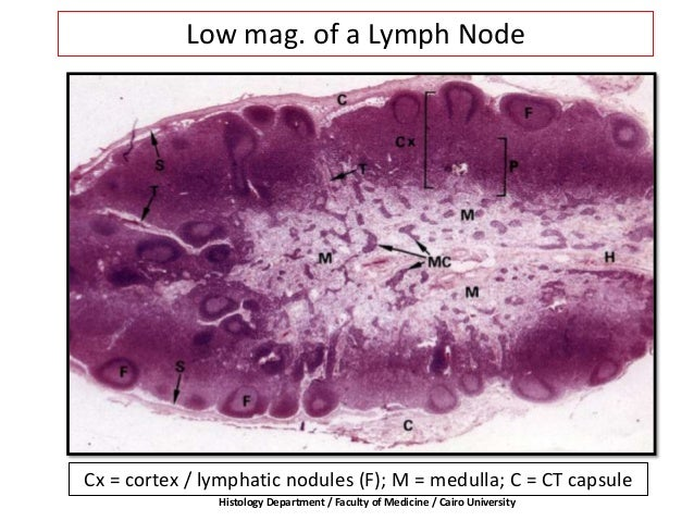 Low mag. of a Lymph Node Cx = cortex / lymphatic nodules (F); M = medulla; C = CT capsule Histology Department / Faculty o...